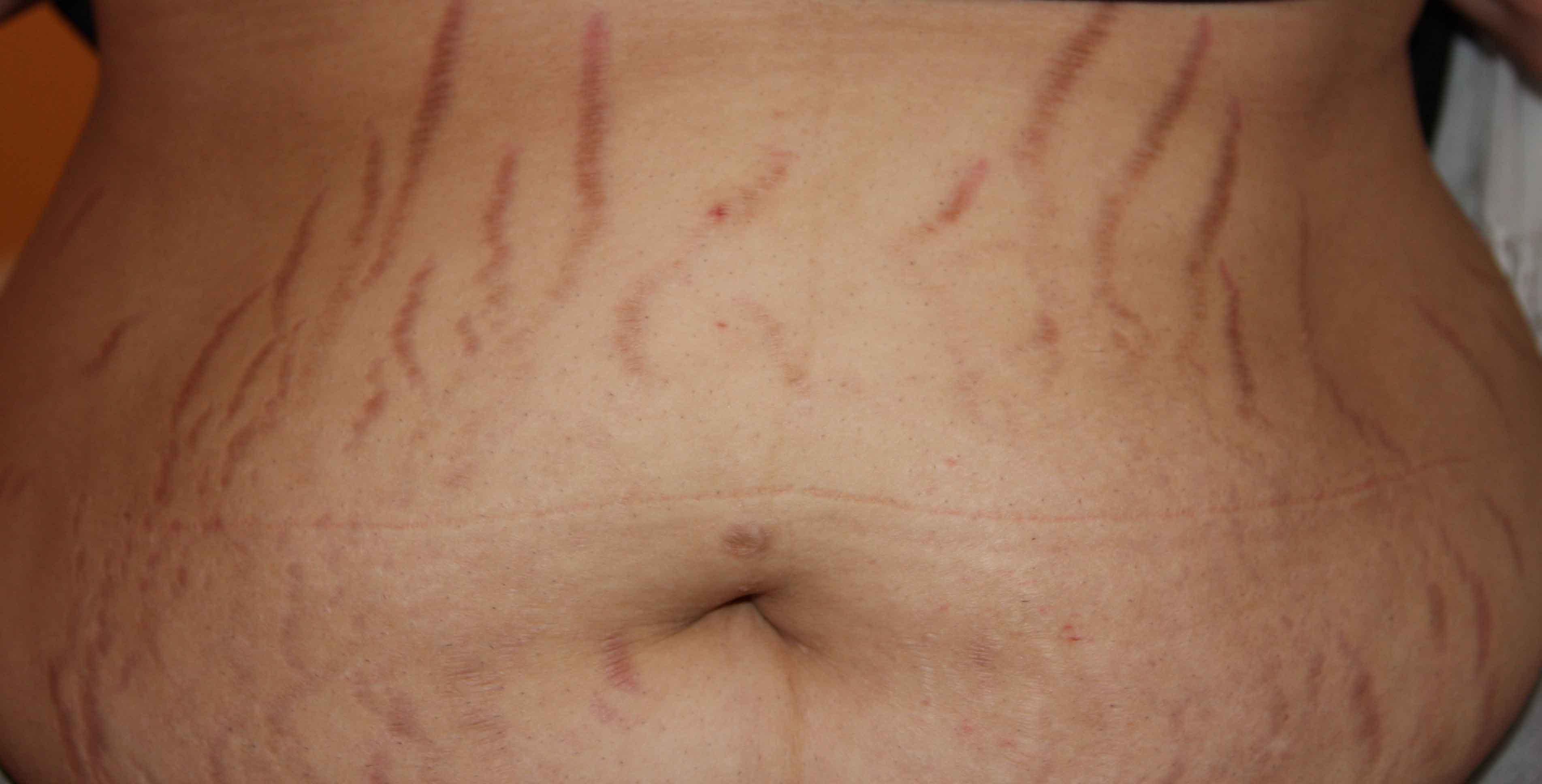 Strerch marks