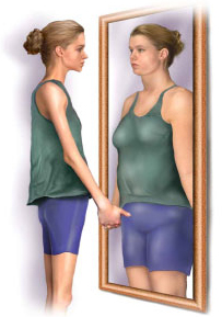 distorted body image Body Image   Is Yours Really What You Think It Is?